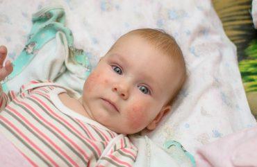 Vaikų alergijos maistui: augimo tempai ir komplikacijų dažnis – gąsdinantys